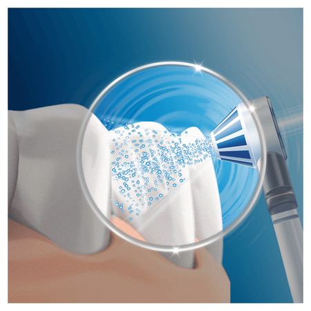 Oral-B OxyJet Aufsteckdüsen, Für eine gezielte   Reinigung mit innovativer Mikro-Luftblasen-Technologie, 4 Stück